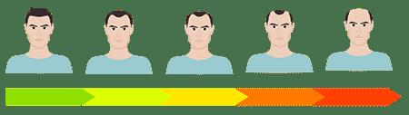 estagios da calvicie masculina
