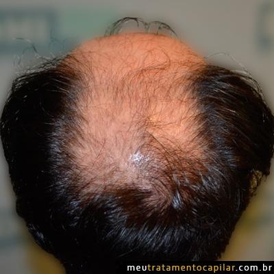 implante-capilar-antes
