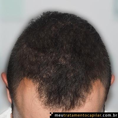 implante-capilar-antes-3