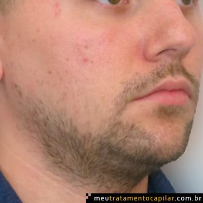 implante-de-barba-antes
