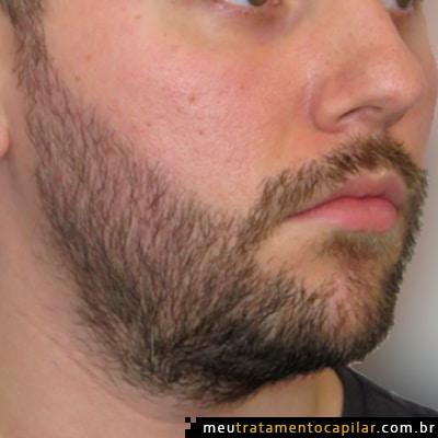 implante-de-barba-depois