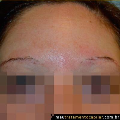 implante-de-sobrancelhas-antes