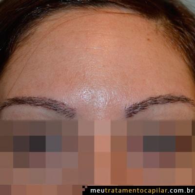 implante-de-sobrancelhas-depois