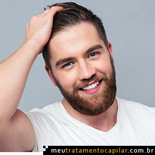 preço de implante capilar masculino
