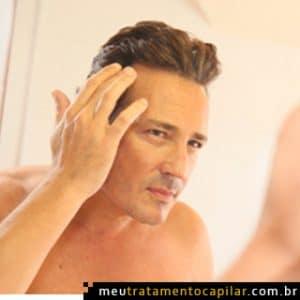 Tratamentos para queda de cabelo